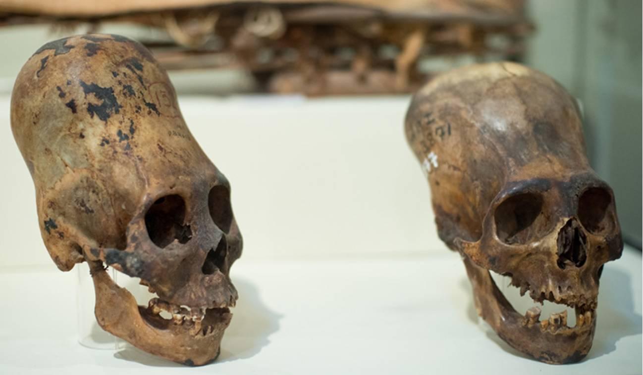 удлиненные черепа из Перу