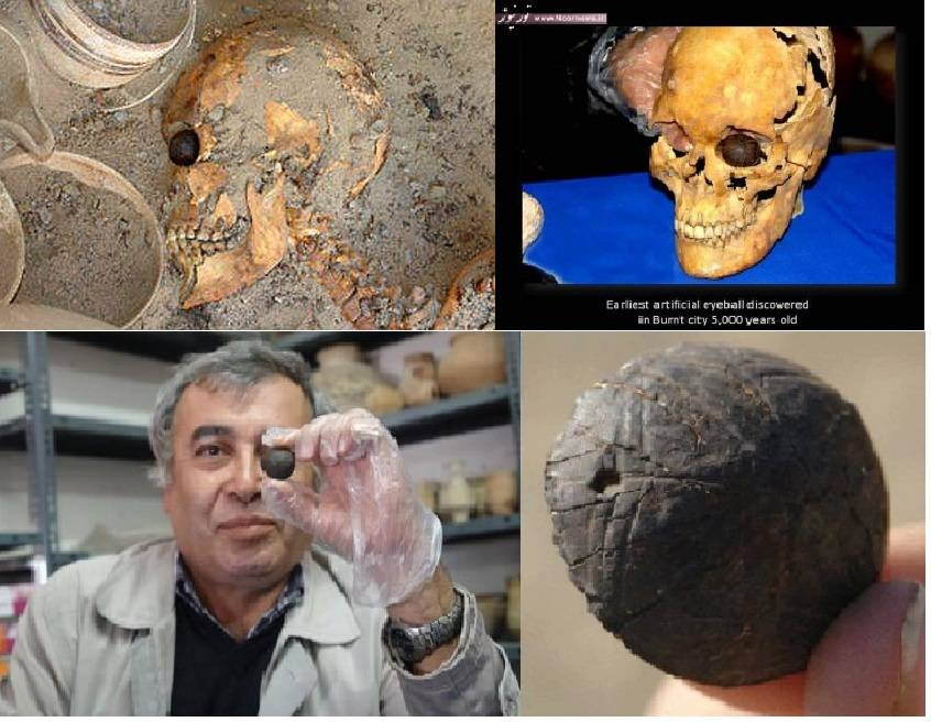глазной протез, найденный в Иране /sanaei.livejournal.com/