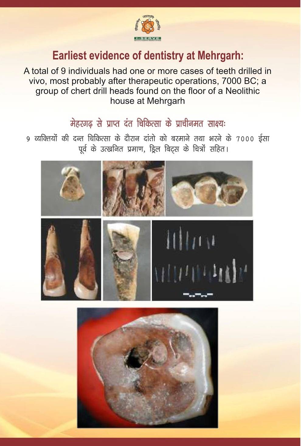 стоматология в древней Индии