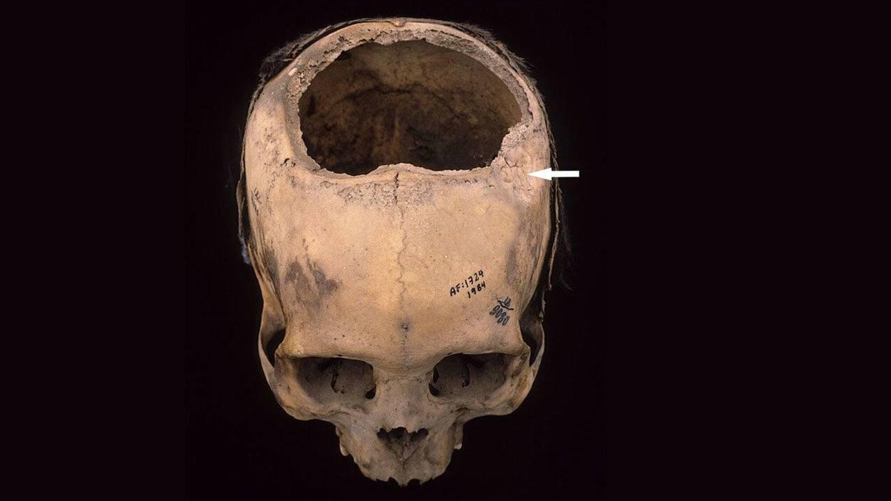 Древние инки делали трепанацию черепа успешнее, чем хирурги времен Первой мировой войны