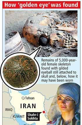 древняя медицина глазной протез и реконструкция лица женщины, носившей протез 5000 лет назад /www.tabnak.ir/